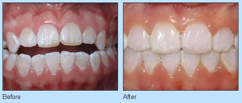 Improve Your Smile at Ries Orthodontics in Omaha NE