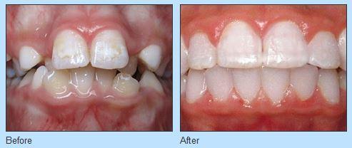 Improve Your Smile at Ries Orthodontics near West Omaha NE
