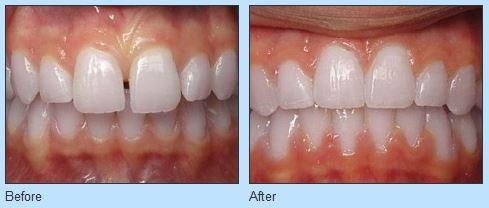 Straighten Your Teeth at Ries Orthodontics near Omaha NE