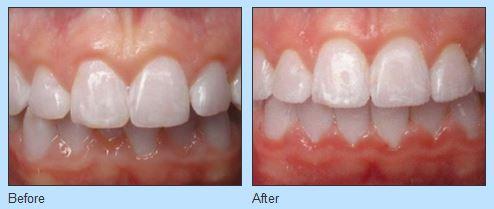 Straighten Your Teeth at Ries Orthodontics near West Omaha NE