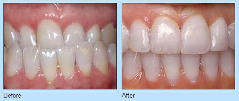 Ries Orthodontics Omaha NE